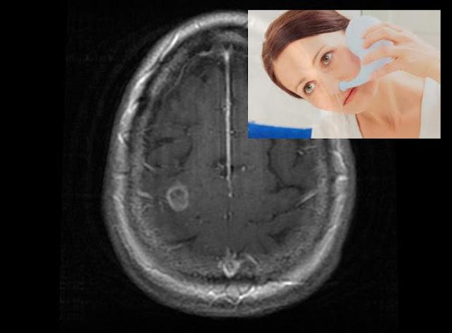 Neti Pot ile burun içi yıkama - Balamuthia Mandrillaris ile beyin enfeksiyonu - Beyinde amip enfeksiyonu - Bir neti pot nasıl kullanılır?