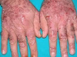 Obat gatal eksim ampuh di kaki dan tangan