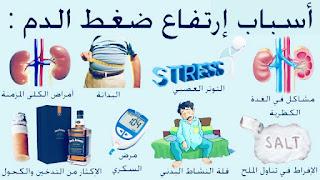 اعراض ارتفاع ضغط الدم-Symptoms of hypertension