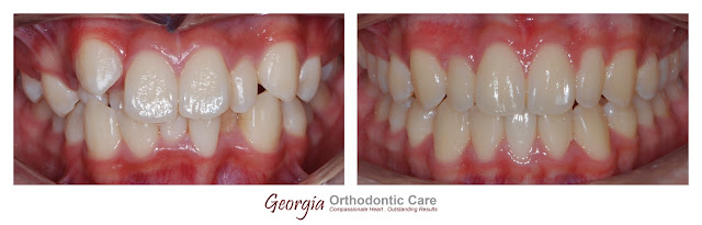 Lower Incisor Extraction in Case of Tooth Size Discrepancy, Georgia Orthodontic Care, Lawrenceville & Norcross, Georgia