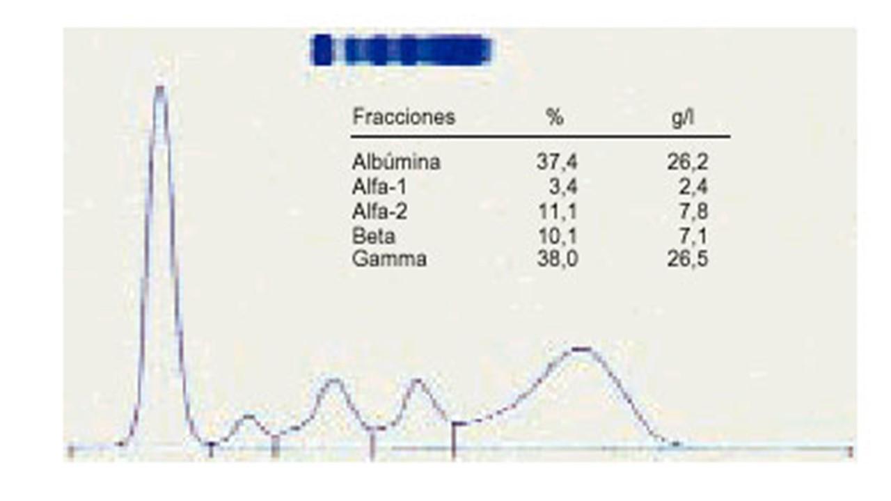 srm-proteina c reactiva c.masa