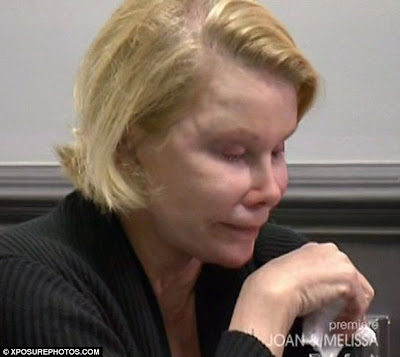 Fashion Police Host, Joan Rivers  Looking Scary After Undergoing ANOTHER Plastic Surgery For The 734th Time