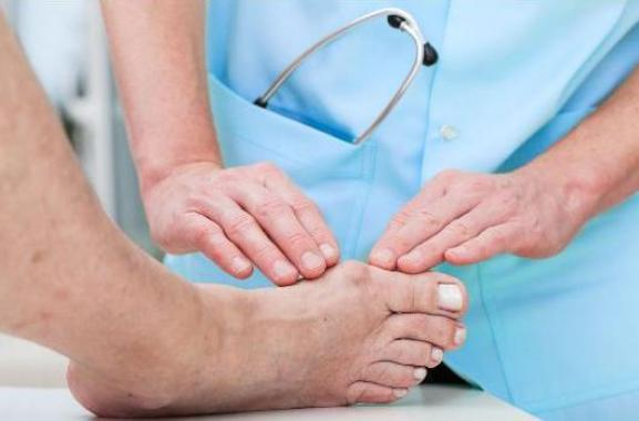 How to Cure Deformed Toes and Bunions