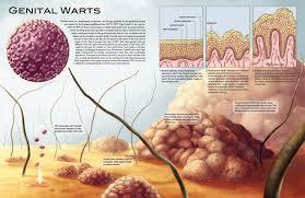 Genital Warts Atau Kutil Kelamin