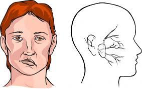 cara mengobati stroke ringan pada wajah