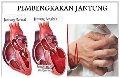 Obati Pembengkakan Jantung Dengan Kemangi