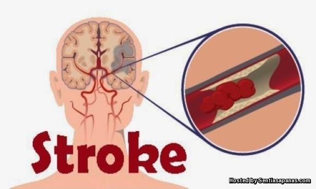 Bahaya Dan Punca Penyakit Strok
