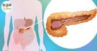 https://steviaven.blogspot.com/2018/04/cancer-pancreas-enfermedad-afecta-mas-personas.html