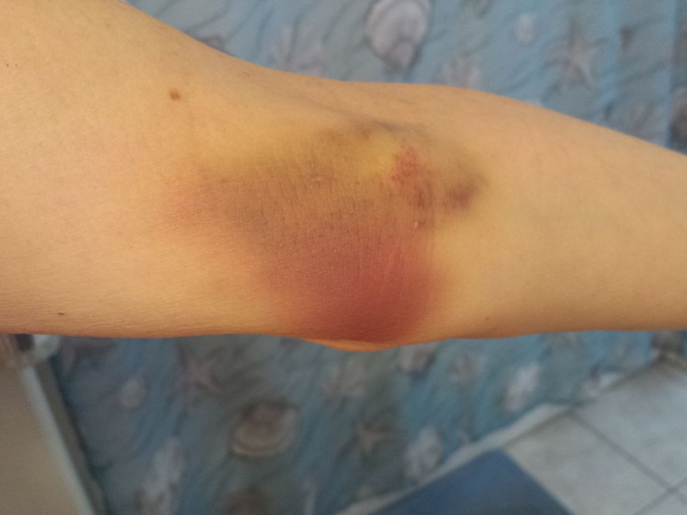 rockis rockn blog er souvenir bruise due to iv leaking