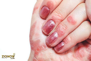 HOW TO TREAT NAIL PSORIASIS NATURALLY (NAILS INFECTION) 6