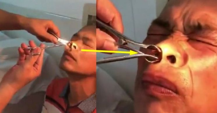 Pria Ini Mimisan Lebih dari 10 Hari, Mengejutkan Dokter Temukan Hewan Hidup Bersarang di Hidung! Ternyata Ini Penyebabnya