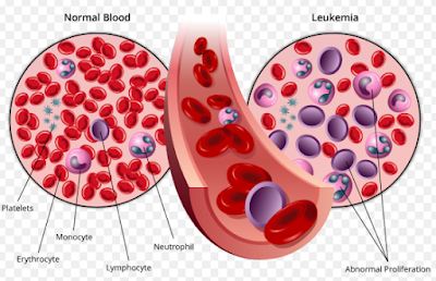 Dear Women, Here Are 5 Signs Of Leukemia You Probably Don't Know But Should Know | Leukemia Symptoms |