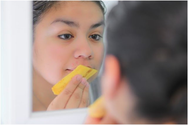 She taped the banana on her skin. Once you see the result, you'll surely try this!