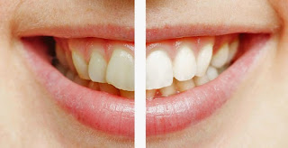 the cosmetic dental center of huntsville teeth whitening