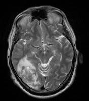 brain MRI T2
