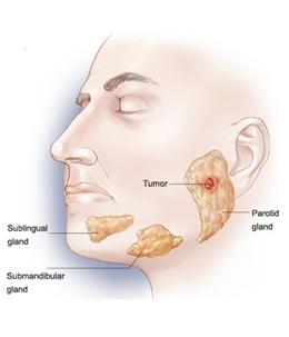 Pengobatan Terbaik Tumor Parotis