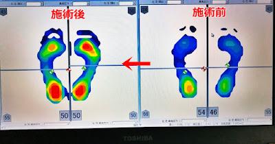 足圧バランス測定の施術前と施術後の比較①