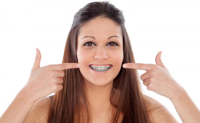http://whitefielddentist.com/resources/learn-more-about-braces/