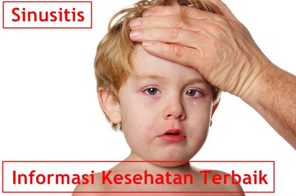11 Gejala dan Penyebab Penyakit Sinusitis