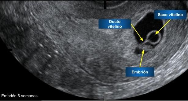 Que quiere decir saco gestacional sin embrion