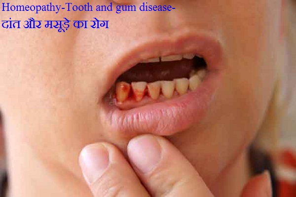 Tooth and gum disease