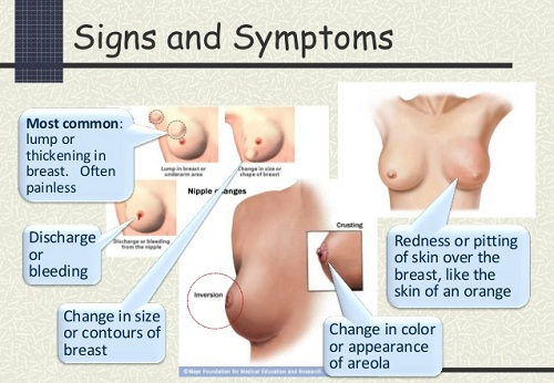 breast cancer stages and types jpg 853x1280