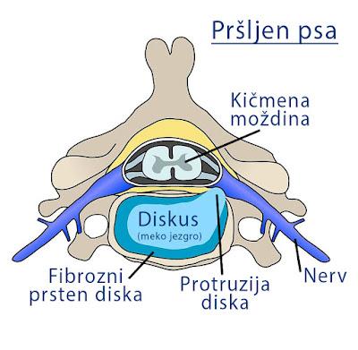 Prolaps diska - grafički prikaz