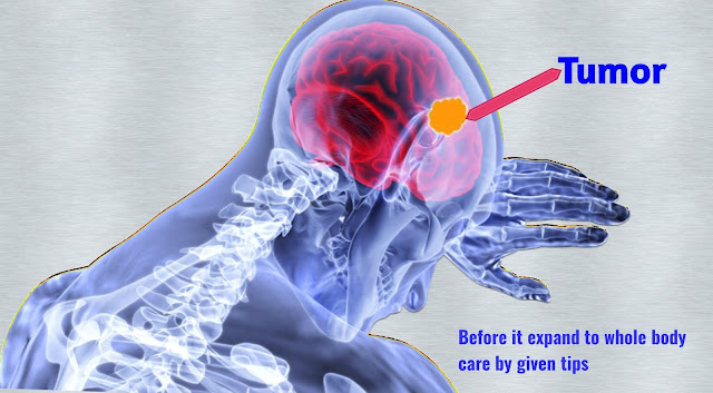 How to escape from brain tumor with home treatment