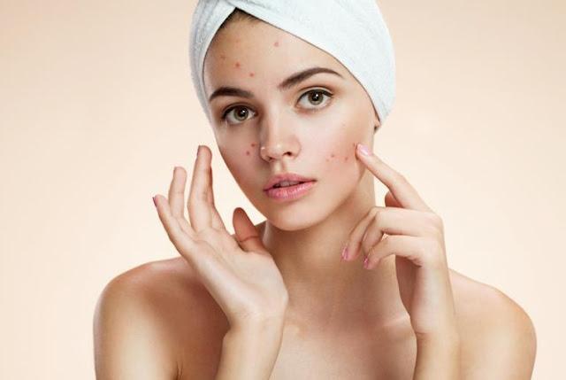 5 Acne Treatment Tips Yоu Cаn Uѕе Today