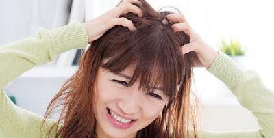 Penyebab Kulit Kepala Gatal dan Cara Mengatasinya
