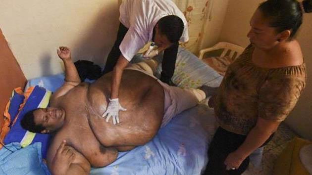 Mengharukan!!! Dengan Bobot 400 kg Pria ini Butuh Pemadam Kebakaran untuk Hidup