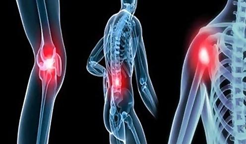 ciri ciri penyakit asam urat, kolesterol dan rematik