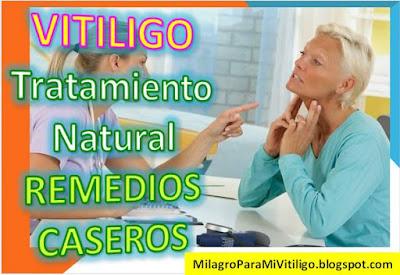como-curar-el-vitiligo-tratamiento-casero-remedio-natural