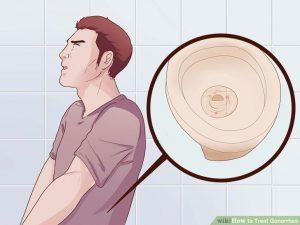 Cara mengobati penis sakit keluar cairan kuning kental