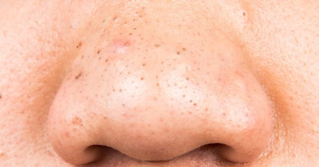 How to remove Blackheads from face - Men & Women