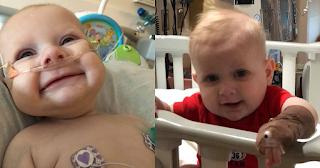 Ο μόλις 8 μηνών Ηλίας Αργυροκαστρίτης αναζητά συμβατό δότη μυελού των οστών