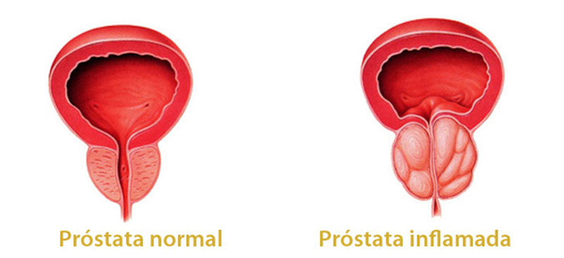 calor en la prostatitis ano