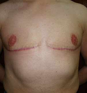 Outcome after radical bilateral mastectomy