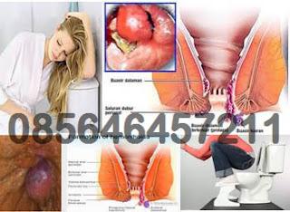 Obat Untuk Wasir (Hemoroid) di Apotek
