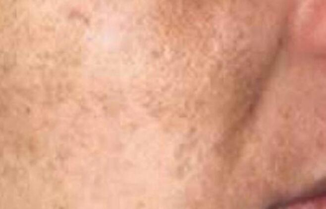 Cara Mengatasi Dan Mencegah Flek Pada Wajah Cara Mengatasi Dan Mencegah Flek Di Wajah