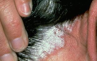 tratamiento para la psoriasis en el cuero cabelludo