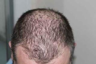 Berapakah Jumlah Helaian Rambut Gugur Normal Setiap Hari?