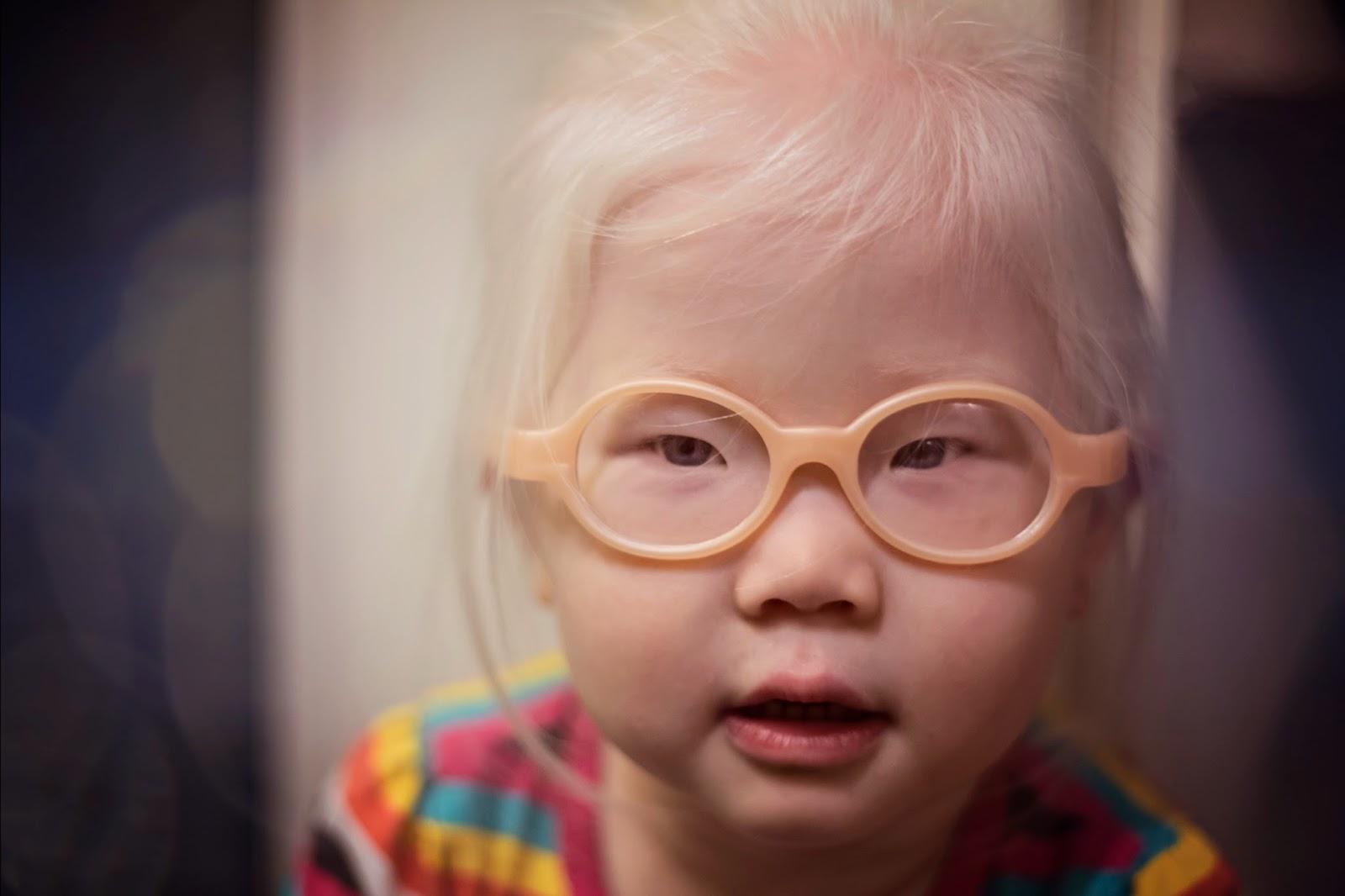 aa4fb44c4ec Elora at Last  Miraflex glasses review