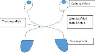 Makroadenoma Hipofisis
