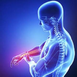 Vị trí đau của viêm dây thần kinh ngoại biên