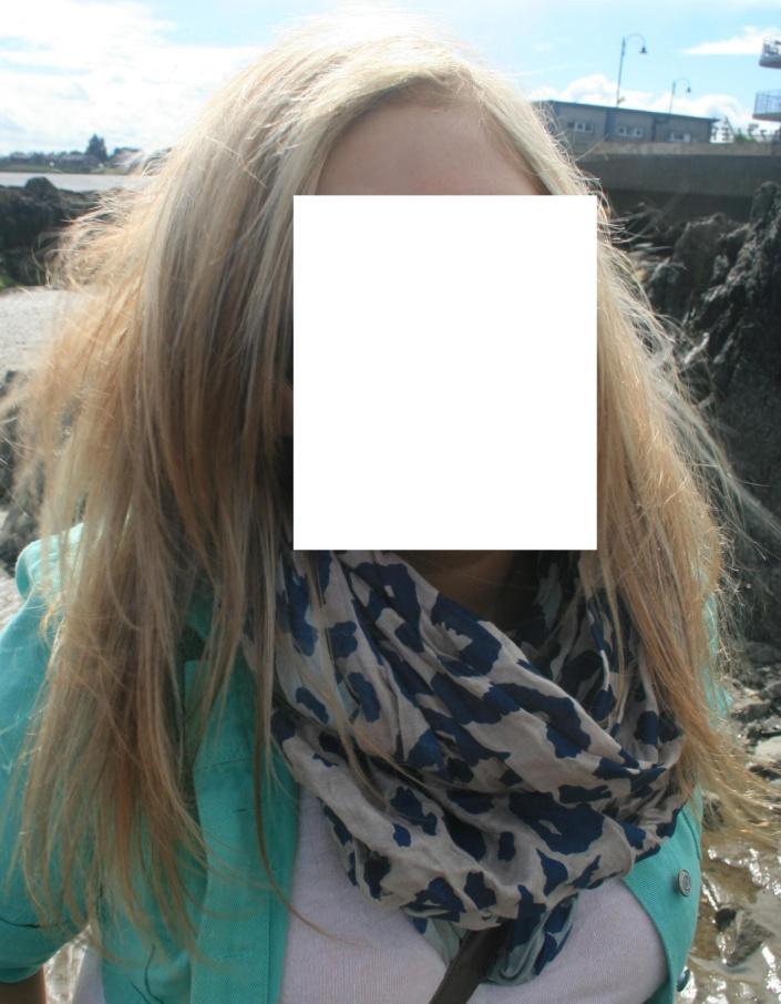 wypadające włosy po lecie