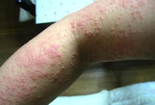 Obat penyakit eksim atau dermatitis