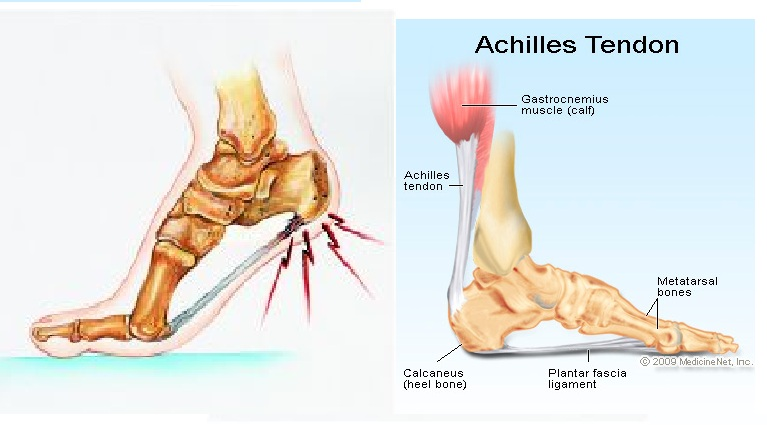 TREATMENTS IN AYURVEDA - MY CLINICAL EXPERIENCES: HEEL PAIN