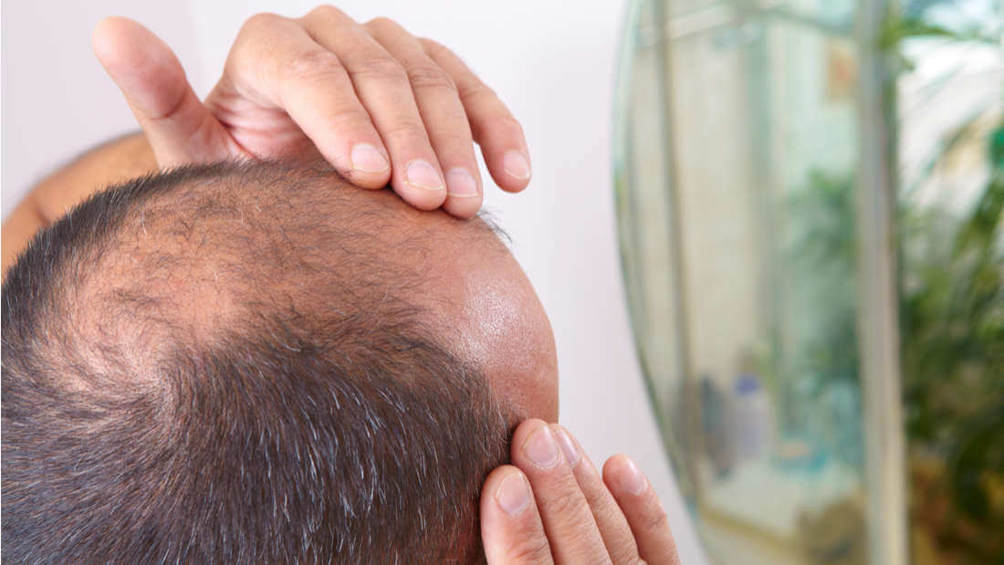 Scientists Might Have Accidentally Found A Possible Treatment For Alopecia
