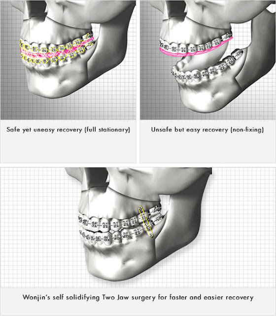 The Best Two Jaw Surgery, Essential Skills of Wonjin Plastic Surgery Korea